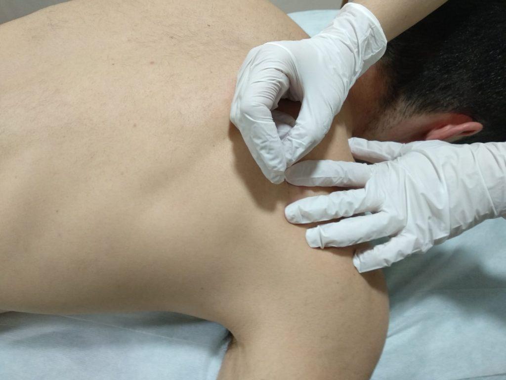 Punción seca aplicada en hombro