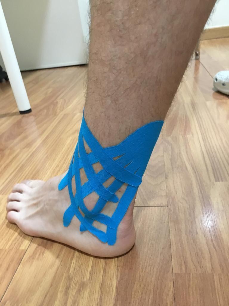 Kinesiotape en forma de pulpo aplicado en el tobillo
