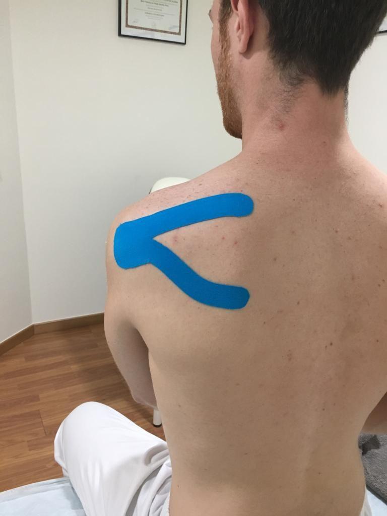 Técnica de aplicación de kinesiotape en Y
