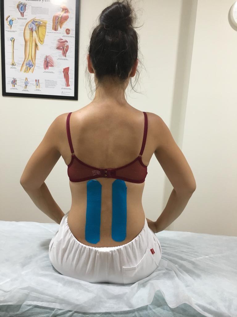 Kinesiotape en forma de I para zonas menores del cuerpo