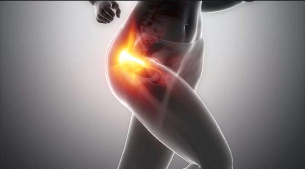 Pubalgia, cómo tratar la lesión