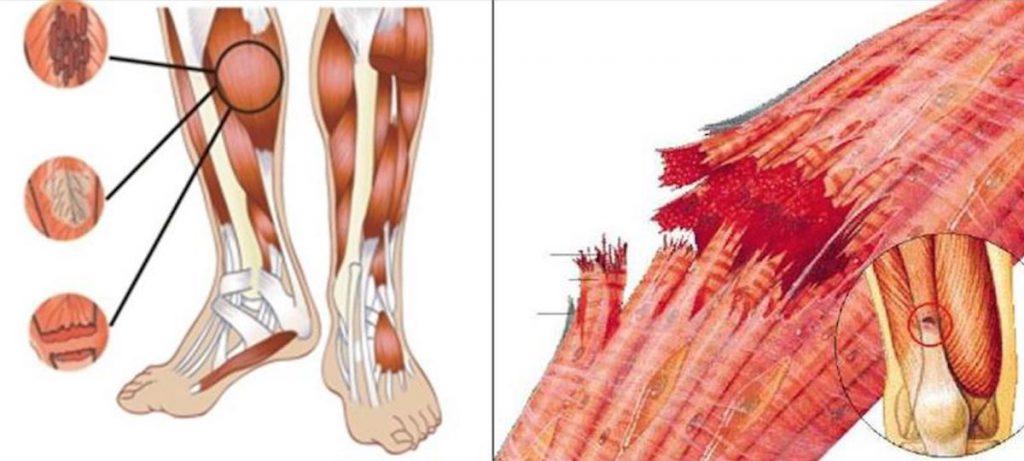 Rotura fibrilar
