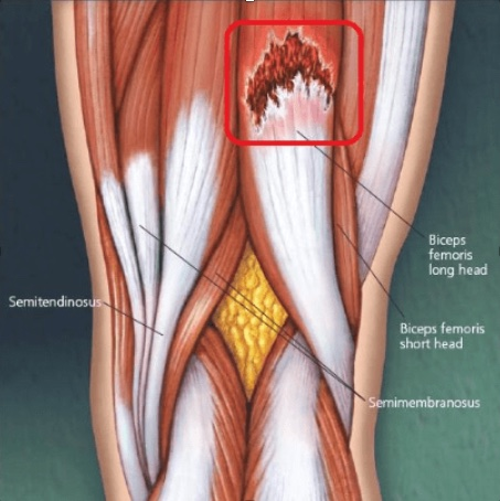 Musculatura implicada en la rotura fibrilar