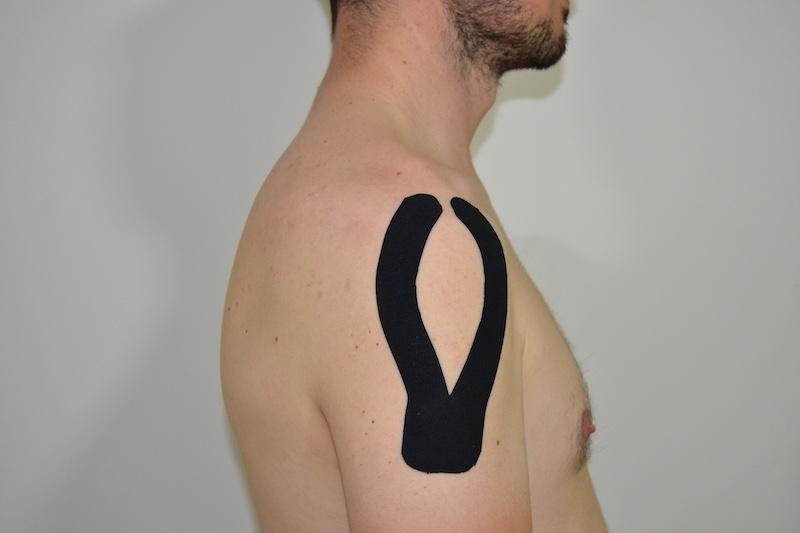 Vendaje neuromuscular hombro
