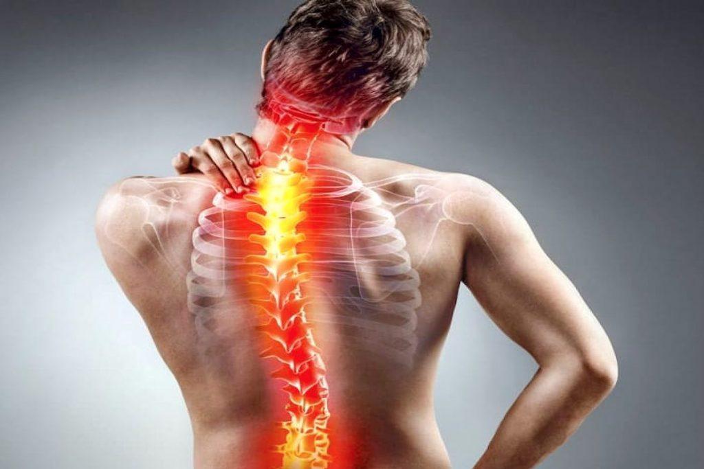 Escoliosis fisioterapia