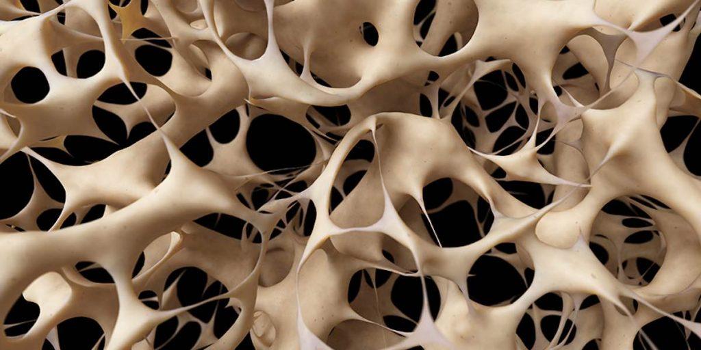 Masa ósea osteoporosis