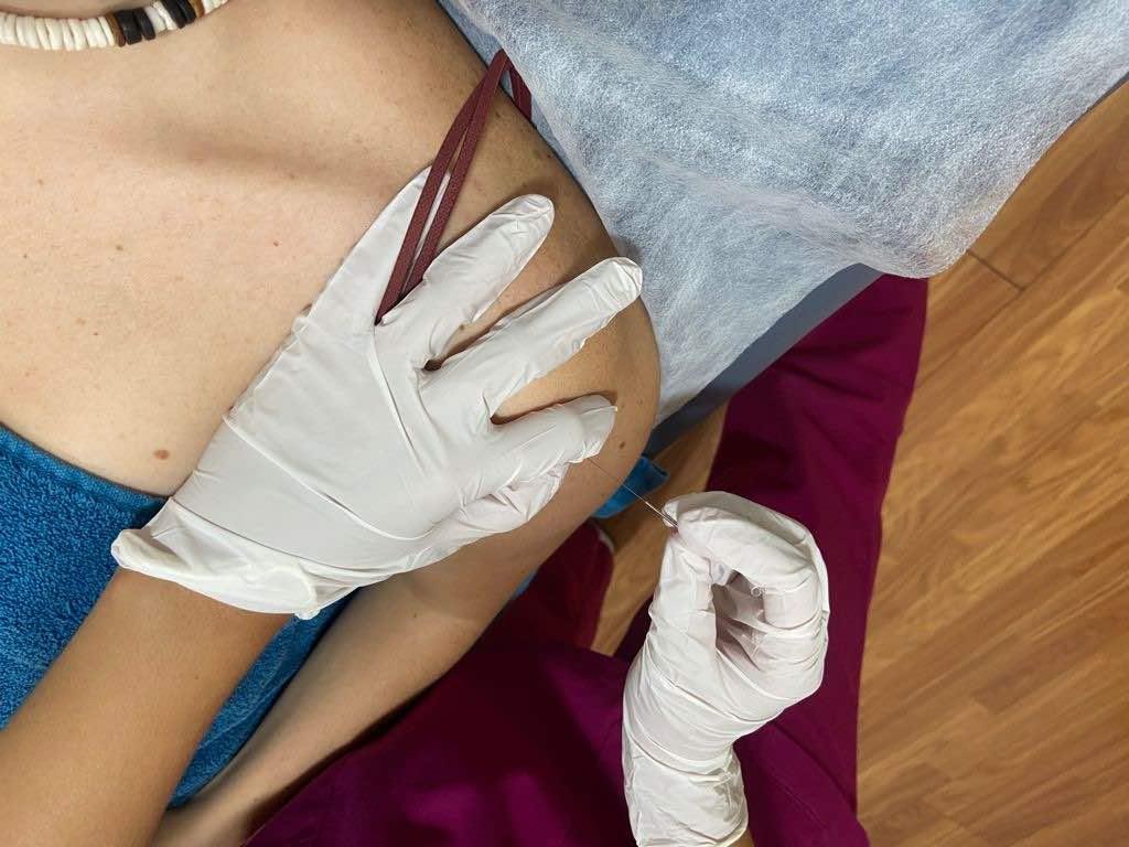Tratamiento con punción seca de la lesión de SLAP en fisioterapia